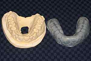 Mouth guard and mold