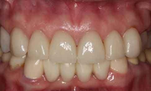 Smile Design Teeth After Smile Design Apex