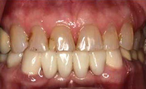 Actual Smile before Smile Design Apex Dental Group