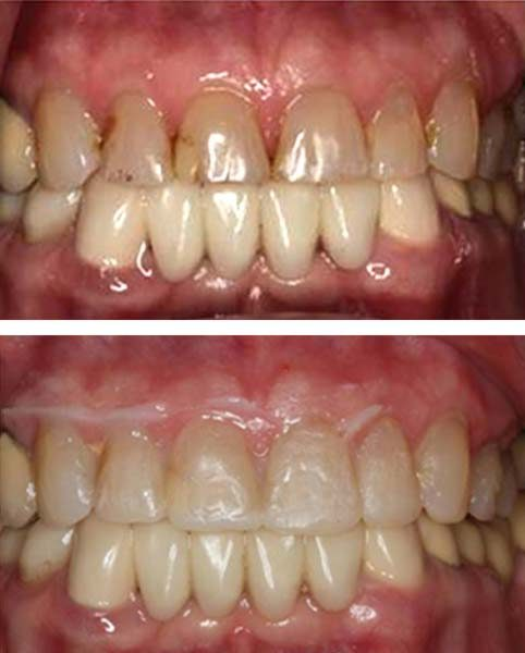 Apex Smile Design Diagnostic Trial - Before and Visualize After
