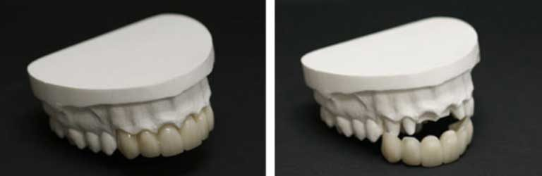 Bridges on plaster molds at Apex Dental Group in Apex NC