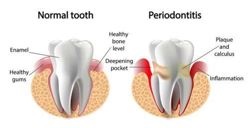 Gum disease chart showing healthy vs gum disease