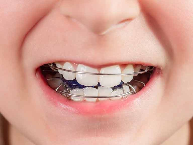 Orthodontic appliance in child's mouth at Apex Dental Group