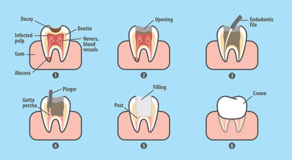 Steps to complete a root canal, illustrated