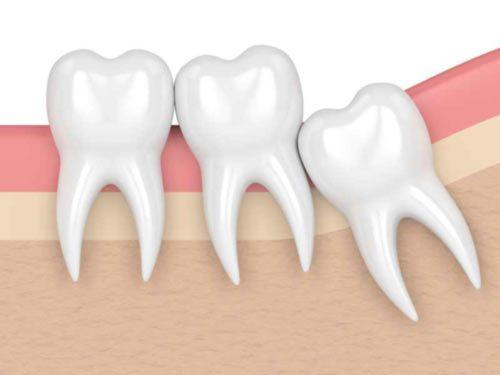 Wisdom tooth impact graphic